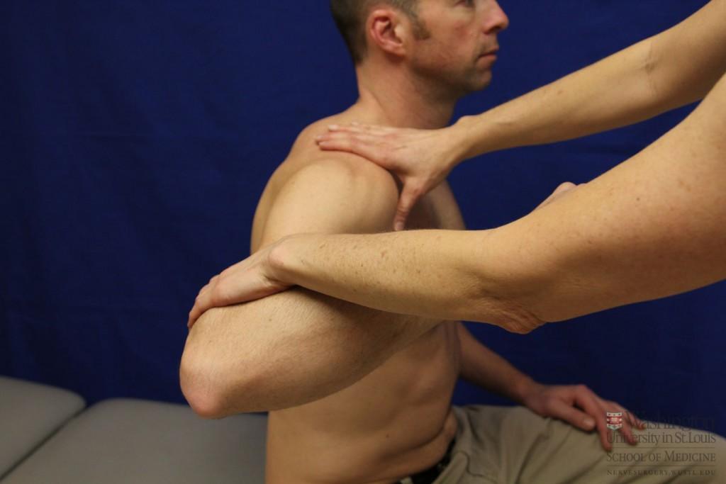 肩のリハビリテーション
