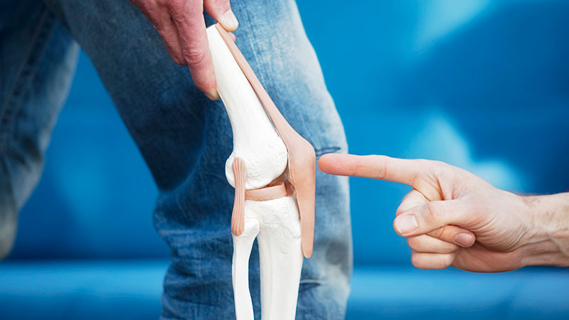 膝置換術処置による機能的転帰に関する差異