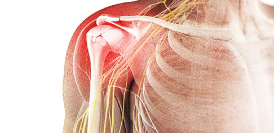 人工逆肩関節置換術後のレジスタンストレーニング