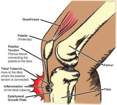 オスグッド膝の痛み