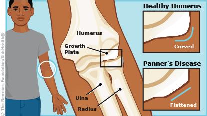 上腕骨小頭障害野球肘