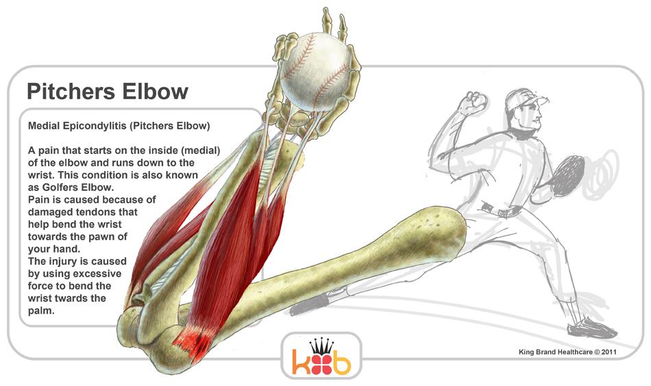 野球肘における解剖学的観点