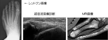 超音波エコー診断